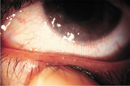 Fish oil supplements and dry eye eyedolatry for What fish has eyelids