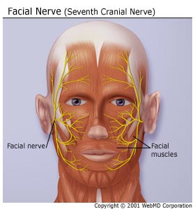 Absolutely stunning compressed facial nerve She