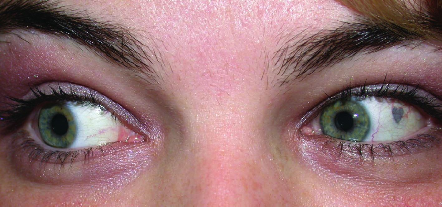 Image result for extraocular implant, Trends