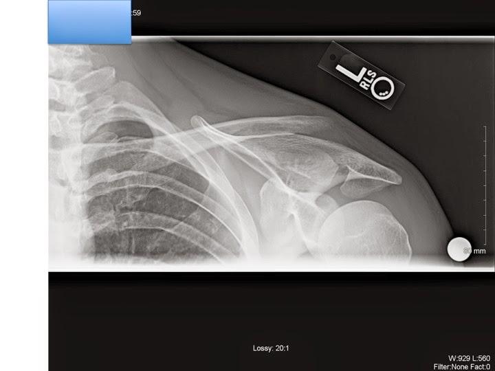 Clavicle Fracture (Broken Collarbone) - Patient education-3.bp.blogspot.com