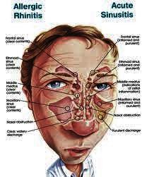 obat herbal terbaik untuk penyakit sinusitis