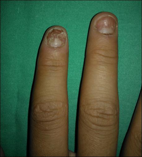 El tratamiento eficaz del hongo de los pie y las uñas los medios públicos