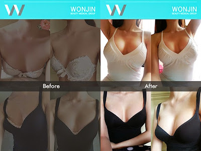 wonjin best breast surgery in korea before after