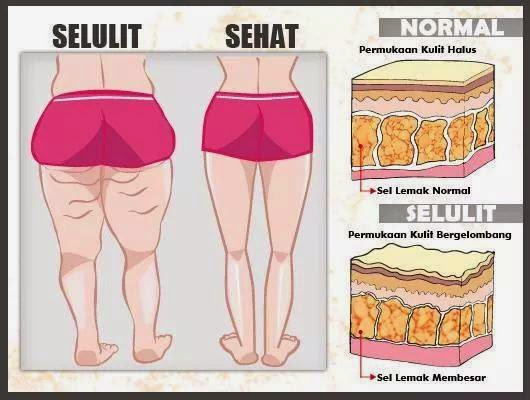 Premium Beautiful membantu menghilangkan selulit di badan