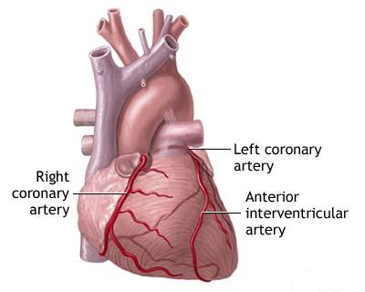 understanding acute coronary syndrome essay Home essays  history of heart attack: diagnosis and understanding  the history of coronary syndromes  it came from reports that acute coronary events rose .