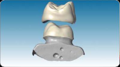 zirkonyum porselen diş tasarımı