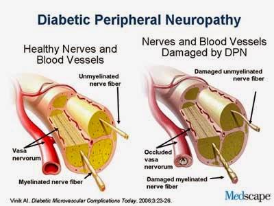 diabetisk neuropati symptomer