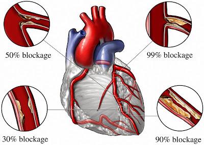 Angina Heart Attack Blockage