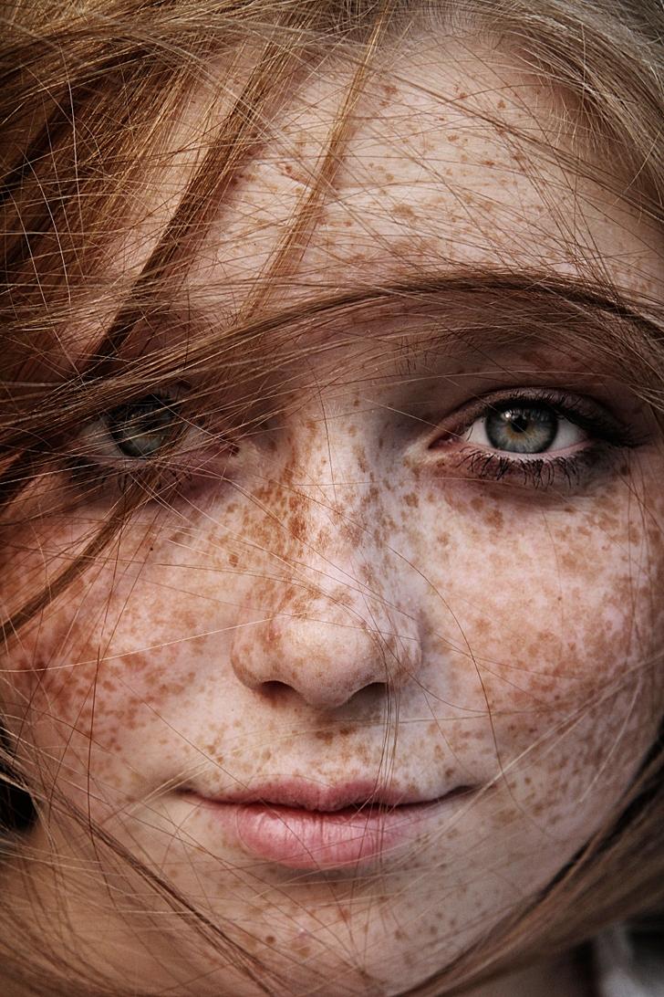 Naked Freckle 49