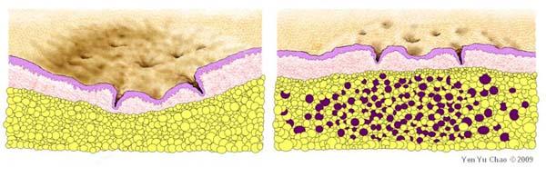 acne scar and fat transfer, 自體脂肪移植治療痘疤, 趙彥宇