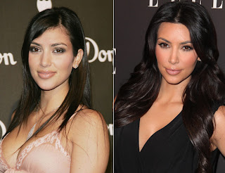 Kim Kardashian Plastic Surgery Before And After