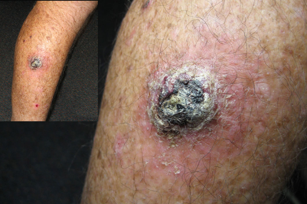 Squamous cell carcinoma to the leg