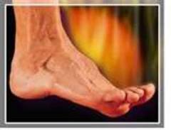 neuropathy in both feet