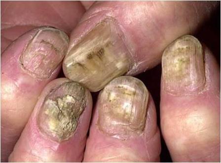 El hongo en la piel los pulgares de los pies