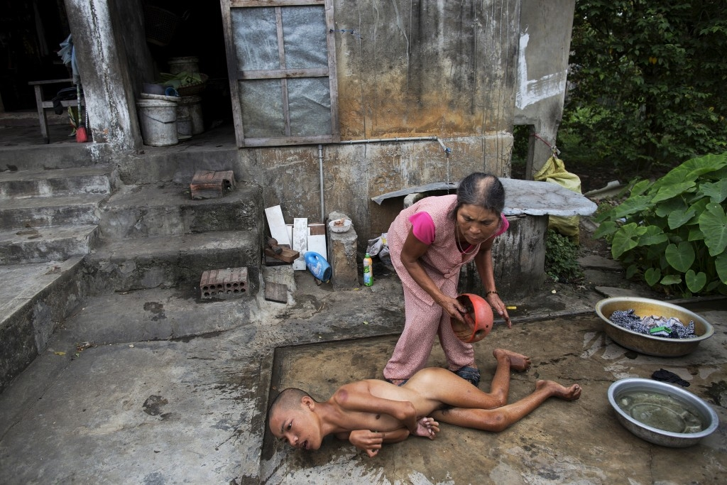 70 Of The Most Touching Photos Taken In 2015 - Tang Thi Thang bathes her disabled son outside their home in Truc Ly, Vietnam. His father was exposed to Agent Orange during the Vietnam war.
