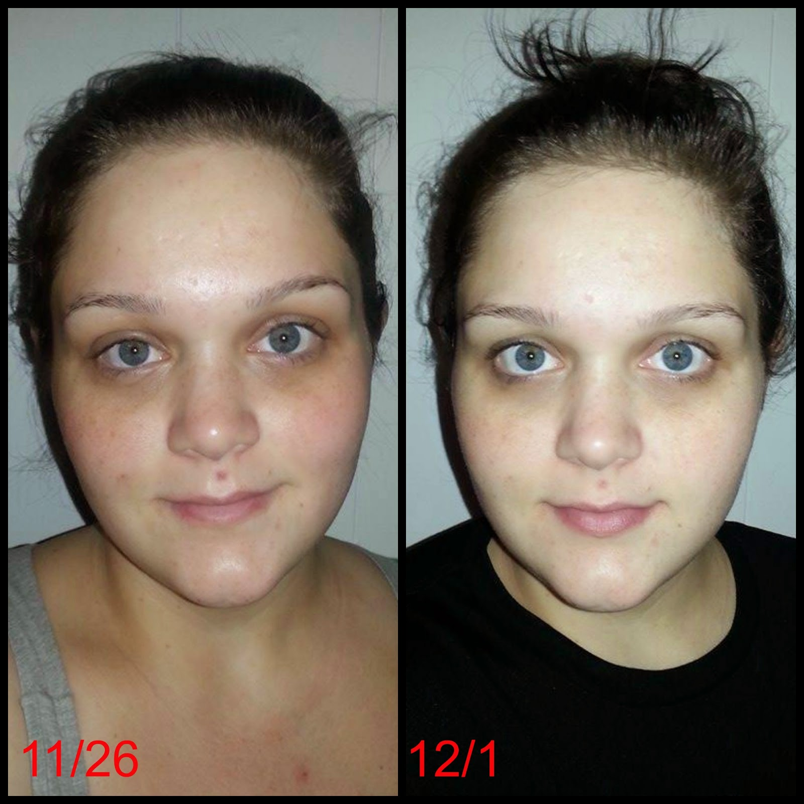 Vitamin C Serum For Face Before And After