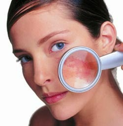 http://www.naturalbodytips.com/2014/09/natural-tips-to-remove-facial-spider.html