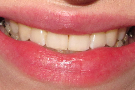 how to clean braces retainers