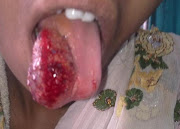 Extensive hemangioma tongue