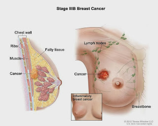 New medizine extends breast cancer patients age