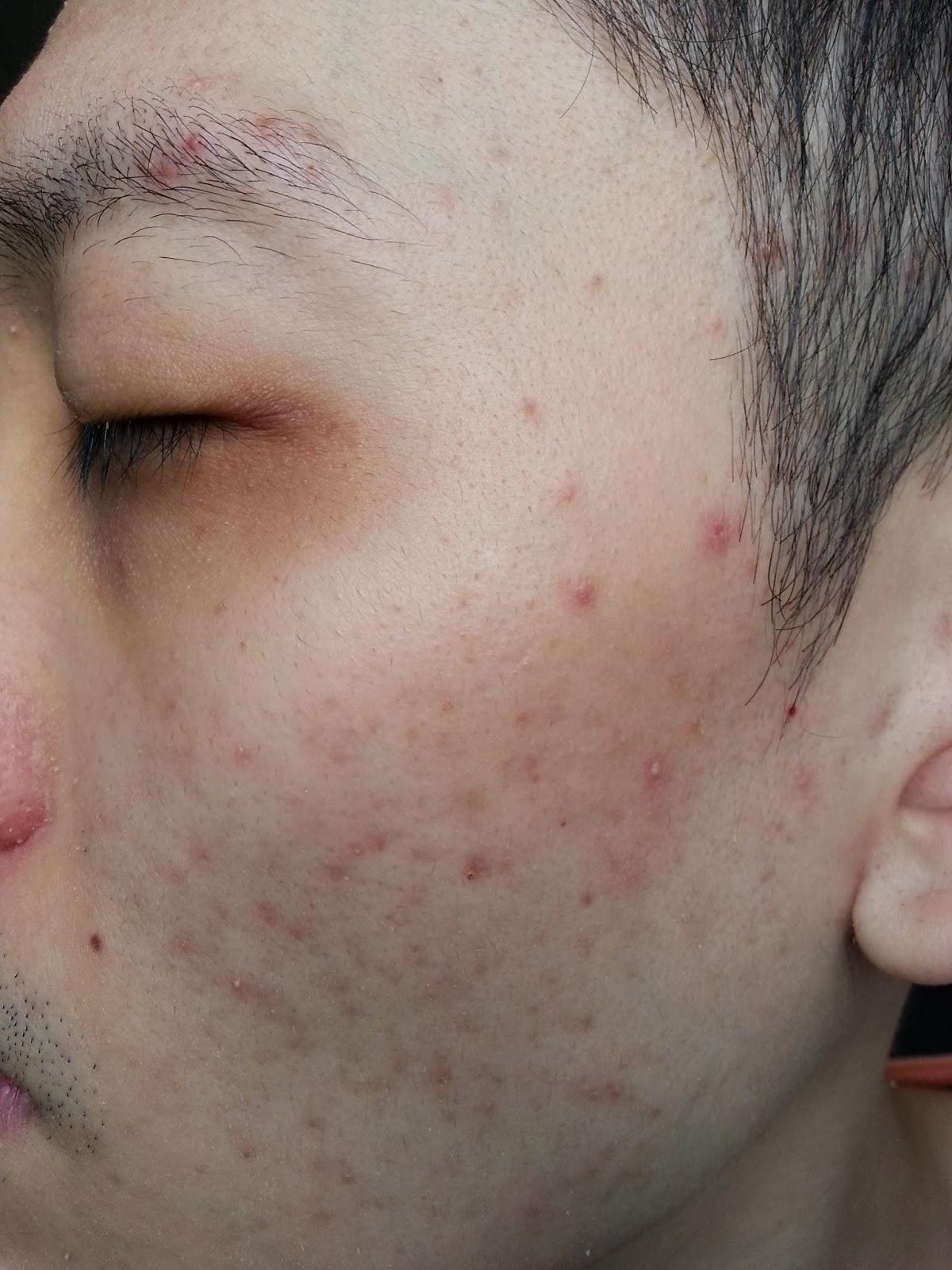 provigil itchy skin