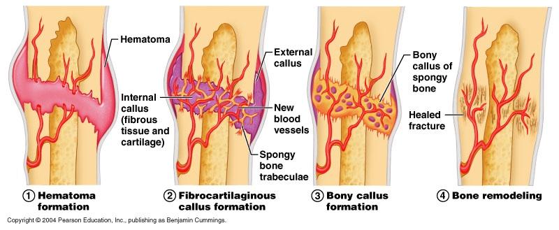 Bone Fracture Healing Time