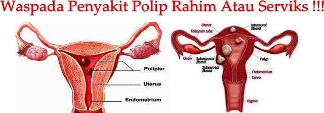 Obat Herbal Polip Rahim Atau Serviks