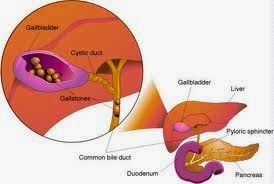 Treatment of Gallstones - What Options Do You Have?