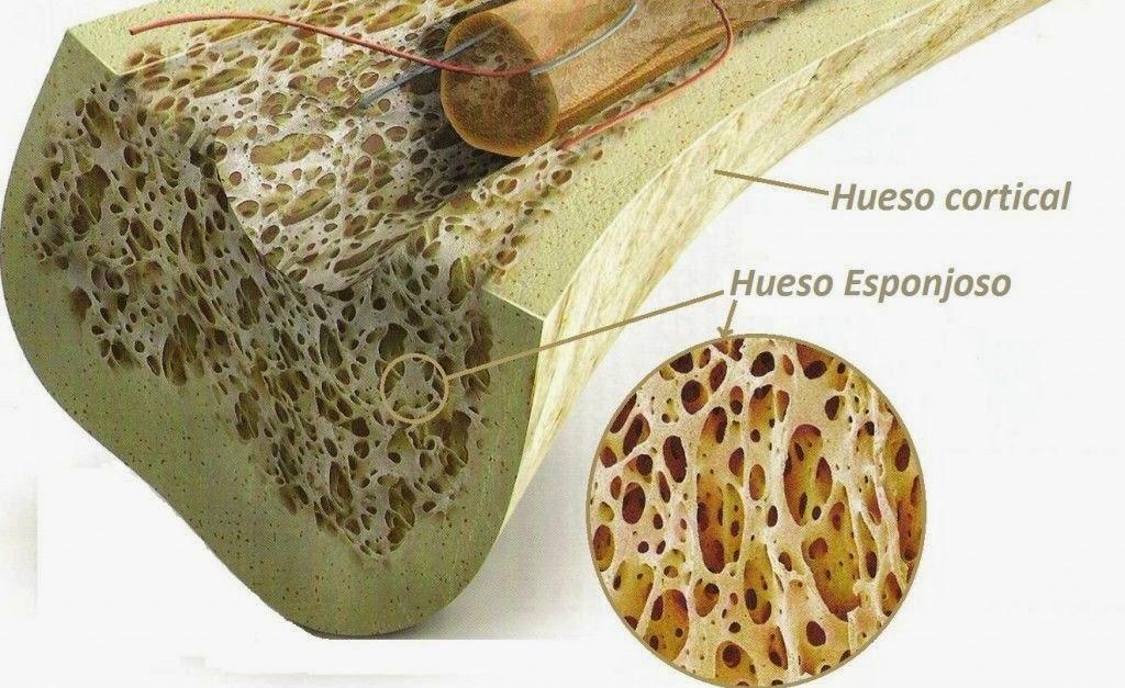 Diarios de Radiologia: Osteopetrosis: La Enfermedad de los Huesos de ...