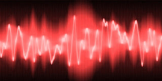 Esposizione a vibrazioni trasmesse al Corpo Intero