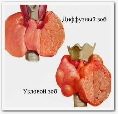 видео урок онлайн Симптомы заболевания щитовидной железы