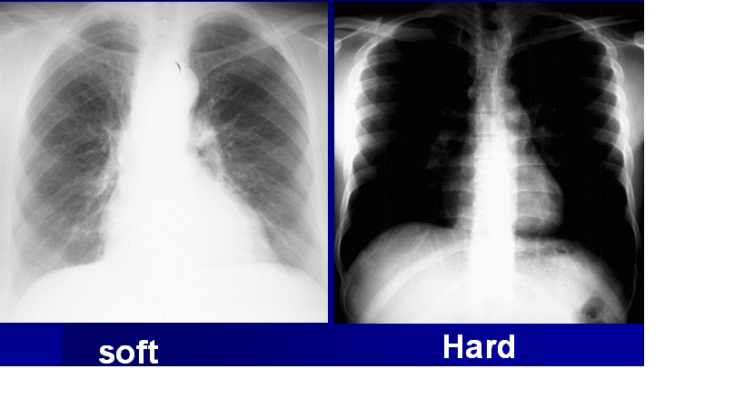 Positioning And Related Anatomy For X Ray Imaging
