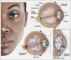 Obat Tradisional Glaukoma Terbaik