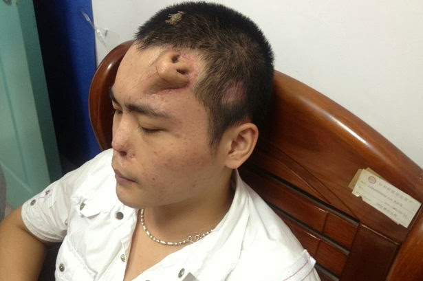 Lelaki Cina mempunyai hidung baru ditanam di dahinya