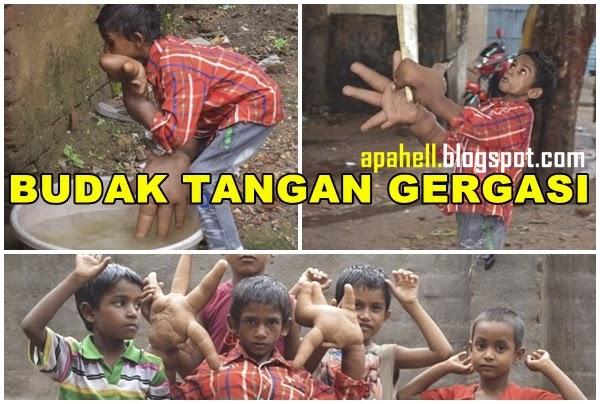 Budak 8 Tahun Bertangan Gergasi di India (10 Gambar)