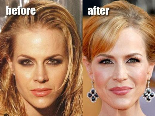 Julie benz plastic surgery before and after botox and breast do you think all celebrities have full thick heads of hair think again check out julie benzs hair extensions pmusecretfo Gallery