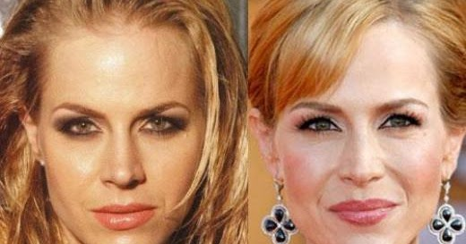High Quality Julie Benz Plastic Surgery Before And After Botox And Breast Implants | Plastic  Surgery