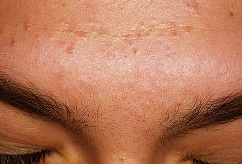 What Does yYour Acne Reveal About Your Health