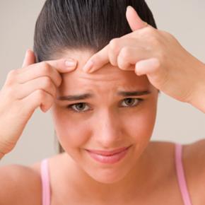 TIPS PARA PREVENIR EL ACNE EN ADOLESCENTES
