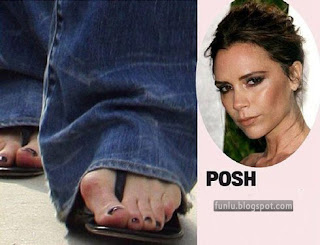 +Ugly feet celebrities+(9) Ugly Feet Of The Celebrities