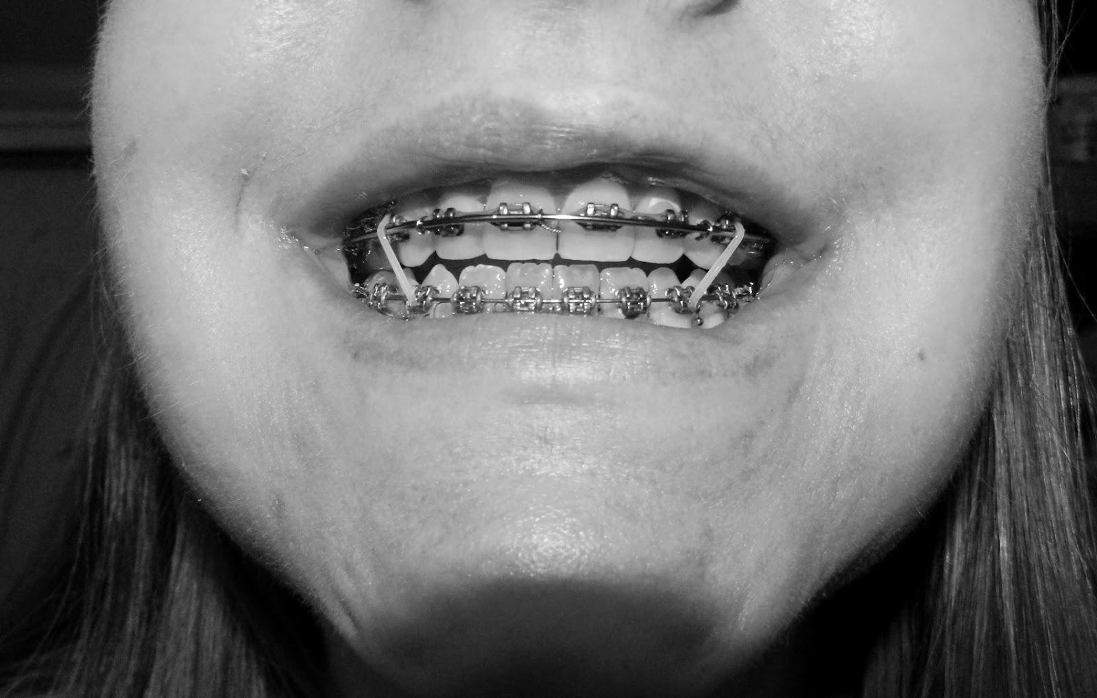 Jaw Jigsaw: May 2014