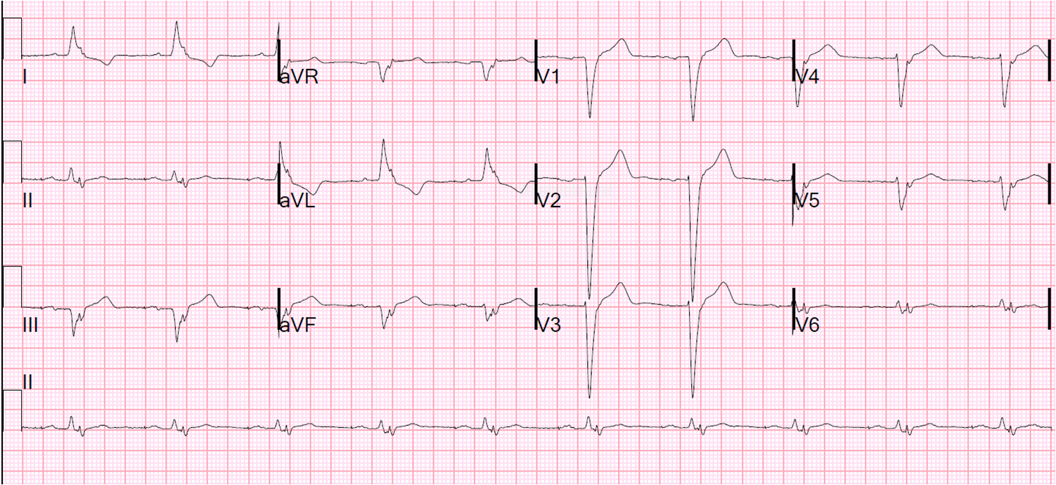 Dr. Smith's ECG Blog: CHF Exacerbation with Old LBBB: Is ...