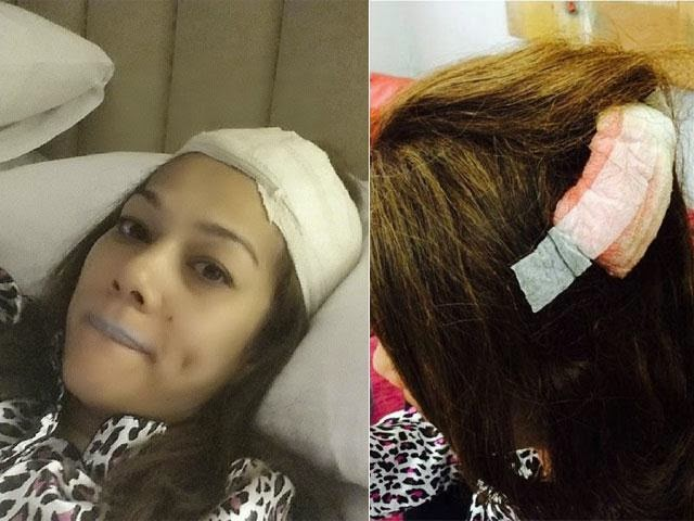 Sharifah Shahira Kena Prank Sampai Cedera Di Kepala!