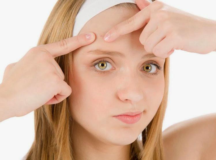 cara alami jerawat mudah sederhana menyingkirkan menyembuhkan di rumah wajah