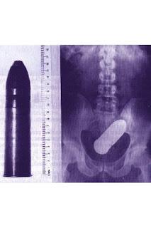 gambar ilustrasi amunisi hidup nyasar ke anus
