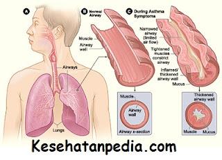 Makanan yang harus dihindari penderita penyakit asma