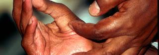 20 Warga Cimanintin Menderita Penyakit Kusta