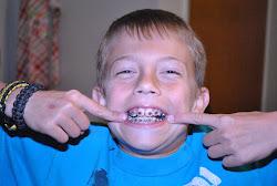 Noah gets braces