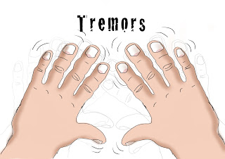 Tremors of Hands