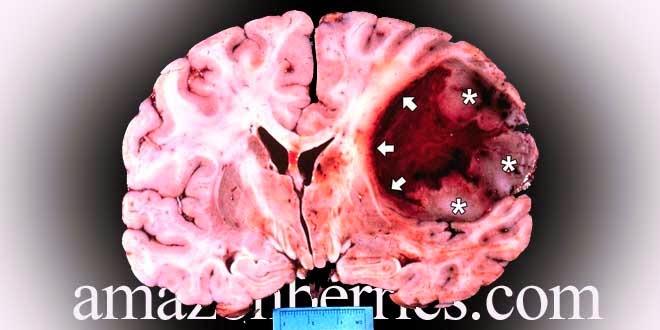 kanker otak,penyakit kanker otak